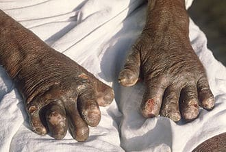 Leprosy deformed hands