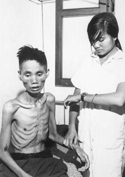 Emaciated Vietnamese Prisoner 1966