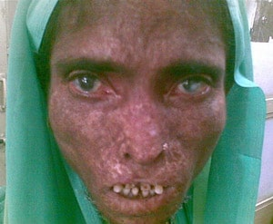 Leprosy Sufferer
